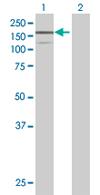 Western blot - Brevican antibody (ab67580)