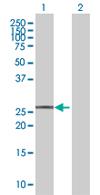 Western blot - EVA1 antibody (ab67581)