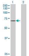 Western blot - CDA08 antibody (ab67583)