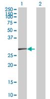 Western blot - SSPN antibody (ab67584)
