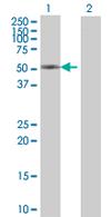 Western blot - CRTAC1 antibody (ab67585)