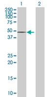 Western blot - SPOCK1 antibody (ab67587)