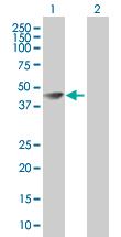 Western blot - SEPT5 antibody (ab67589)