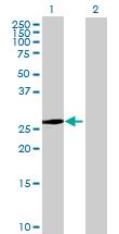 Western blot - ASB9 antibody (ab67593)