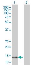 Western blot - CNIH3 antibody (ab67594)