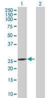 Western blot - NME5 antibody (ab67601)