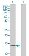 Western blot - PNCK antibody (ab67602)
