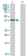 Western blot - TRIM47 antibody (ab67604)