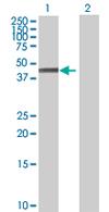 Western blot - RAP80 antibody (ab67606)