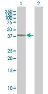 Western blot - WDSUB1 antibody (ab67608)