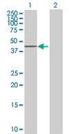 Western blot - FBXO28 antibody (ab67609)