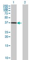 Western blot - HAPLN3 antibody (ab67612)