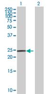 Western blot - HECTD2 antibody (ab67613)