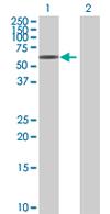 Western blot - CEECAM1 antibody (ab67616)