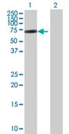 Western blot - AMIGO3 antibody (ab67617)