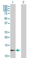 Western blot - CRB3 antibody (ab67618)
