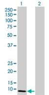 Western blot - SIVA antibody (ab67620)