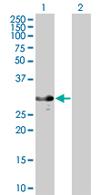Western blot - RASL12  antibody (ab67622)