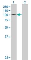 Western blot - HDX antibody (ab67629)