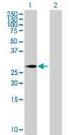 Western blot - PRRX1 antibody (ab67631)