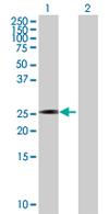 Western blot - VENTX antibody (ab67632)