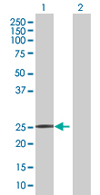Western blot - ZNF501 antibody (ab67634)
