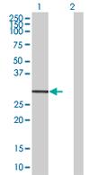 Western blot - SSX5 antibody (ab67635)
