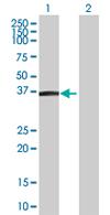 Western blot - MGC17403  antibody (ab67636)