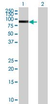 Western blot - SUHW2 antibody (ab67638)