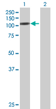 Western blot - CNKSR1 antibody (ab67639)