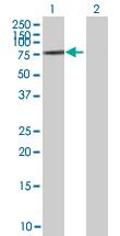 Western blot - ZNF257 antibody (ab67642)