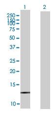 Western blot - LOC148203  antibody (ab67643)