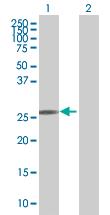 Western blot - OSTF1 antibody (ab67651)