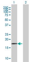 Western blot - FAM107A antibody (ab67652)