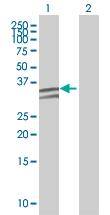 Western blot - NUDT6 antibody (ab67653)