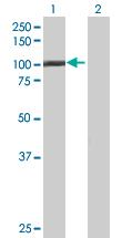 Western blot - C1orf25 antibody (ab67656)