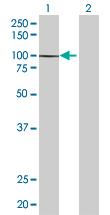 Western blot - BBS12 antibody (ab67659)