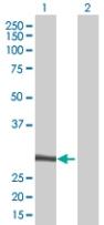 Western blot - NFAM1 antibody (ab67662)