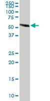 Western blot - EFEMP2 antibody (ab67665)