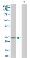 Western blot - DCAKD antibody (ab67667)