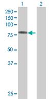 Western blot - RHPN1 antibody (ab67668)