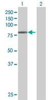Western blot - GNL1 antibody (ab67669)