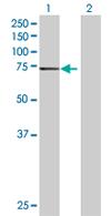 Western blot - ZNF74 antibody (ab67673)