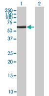 Western blot - ZNF232  antibody (ab67674)