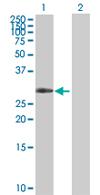Western blot - ZNF483 antibody (ab67675)