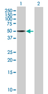 Western blot - LANCL2 antibody (ab67676)