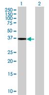 Western blot - COL9A1 antibody (ab67677)