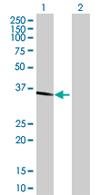 Western blot - ESD antibody (ab67678)