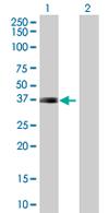 Western blot - ARL10 antibody (ab67679)