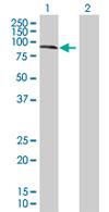 Western blot - KLHL20 antibody (ab67682)